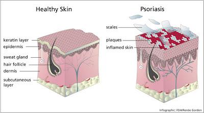 Psoriasis, alteración de la piel.