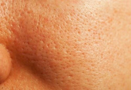 Cerrar los poros abiertos – Tratamiento cosmético