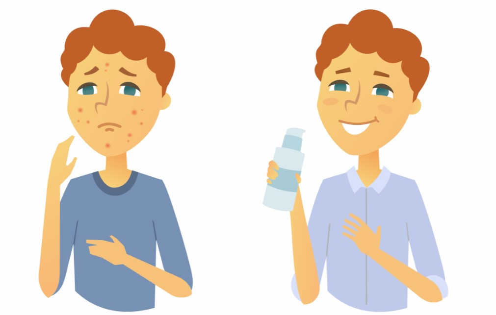 como quitar las manchas del acne