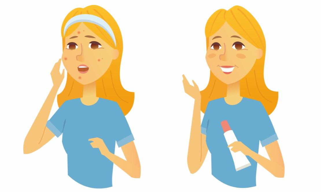 quitar manchas de acne
