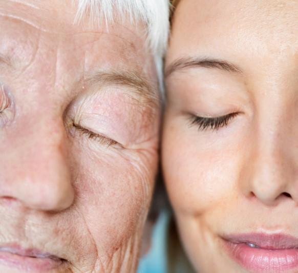Como quitar las Lineas de Expresión de los ojos