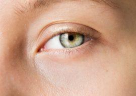 ¡Sin cirugía! Aprende a Eliminar las Patas de Gallo de los Ojos