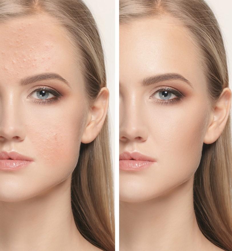 Como quitar granos de la cara
