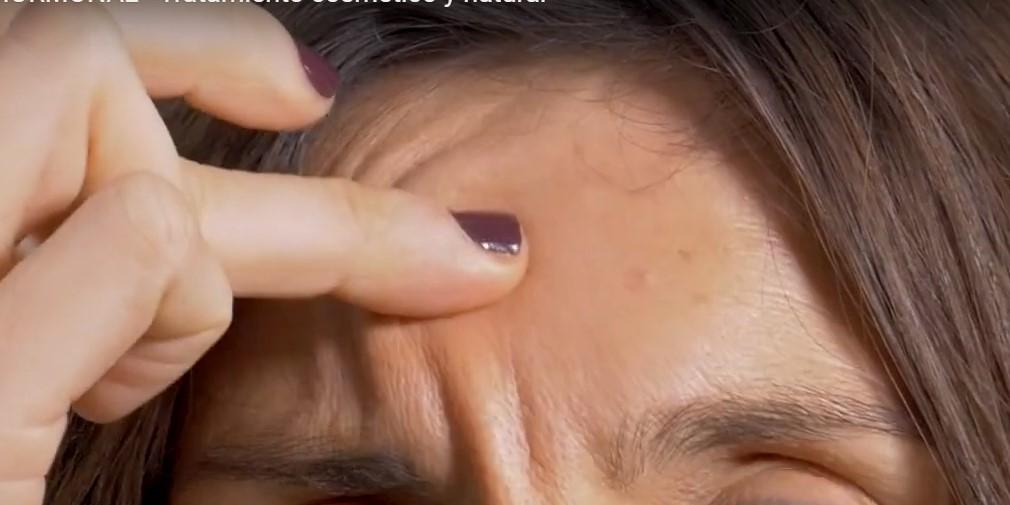 Remedio Casero Acne Hormonal