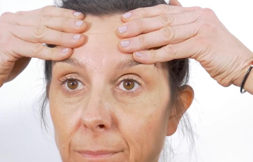 tratamiento arrugas frente