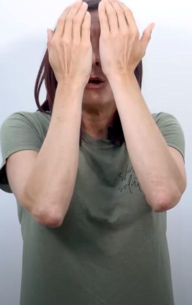 ejercicios dermatitis atopica