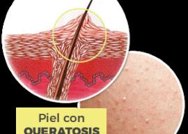 Queratosis Pilaris – Tratamiento para la Piel de Gallina